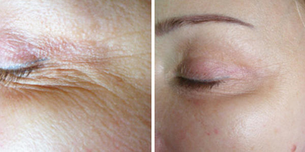 Skin Tightening Before and After - Crows Feet