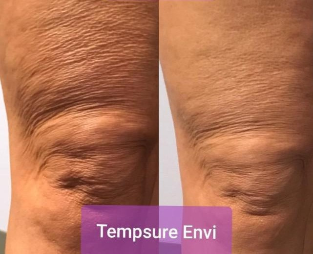 Skin Tightening Before and After - Knees