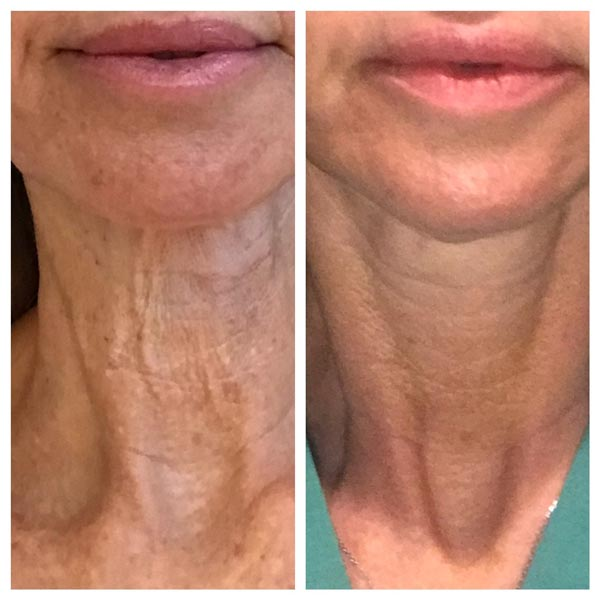 Skin Tightening Before and After - Neck